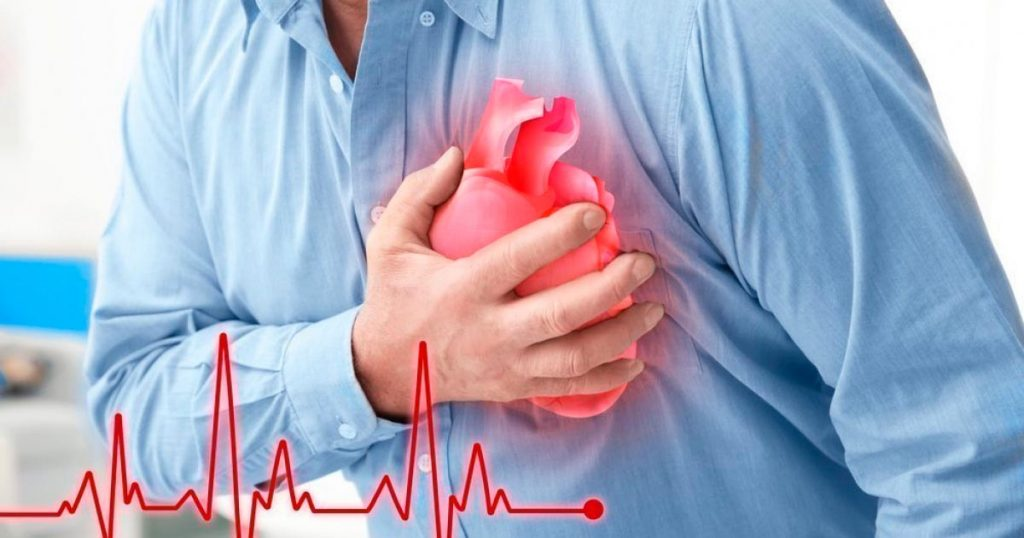 заболеваний в области сердечнососудистой